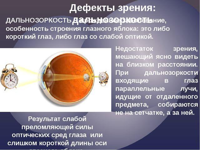 Недостаток зрения, мешающий ясно видеть на близком расстоянии. При дальнозорк...