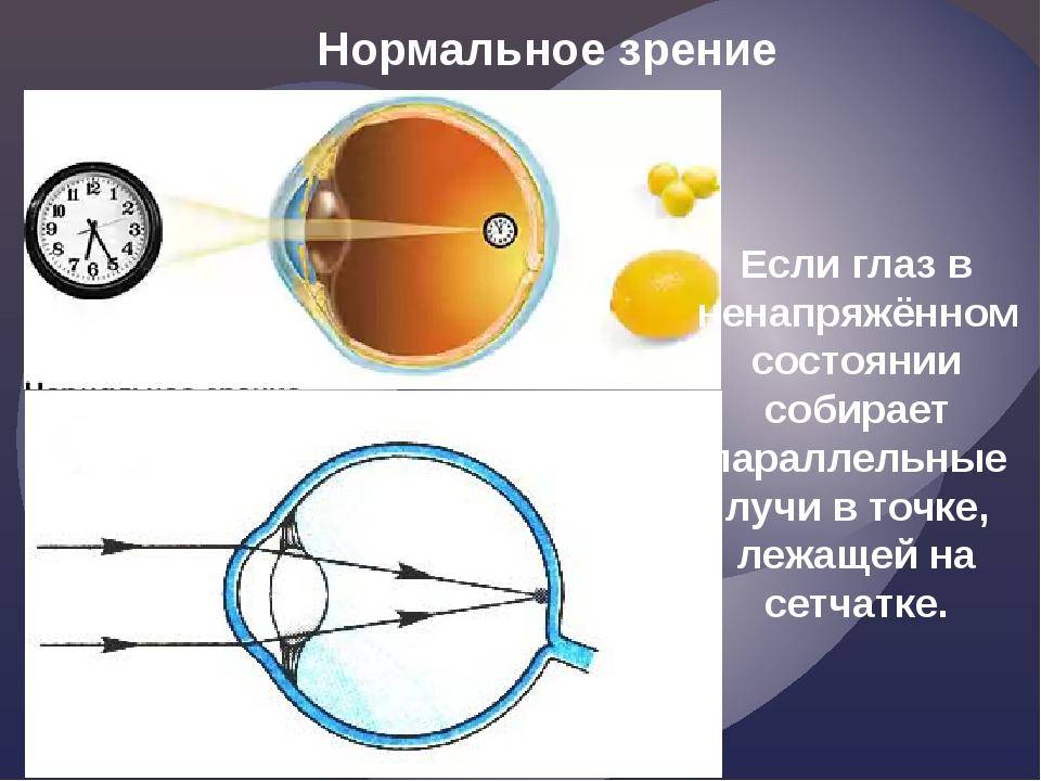 Нормальное зрение Если глаз в ненапряжённом состоянии собирает параллельные л...