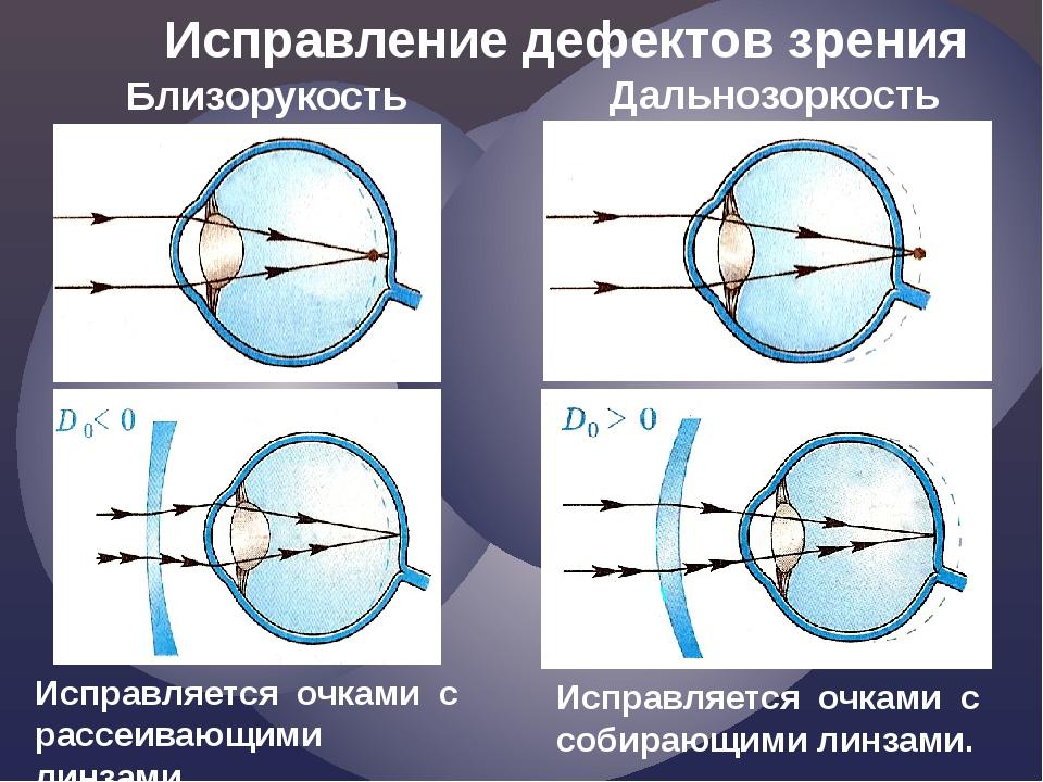 Исправление дефектов зрения Близорукость Дальнозоркость Исправляется очками с...