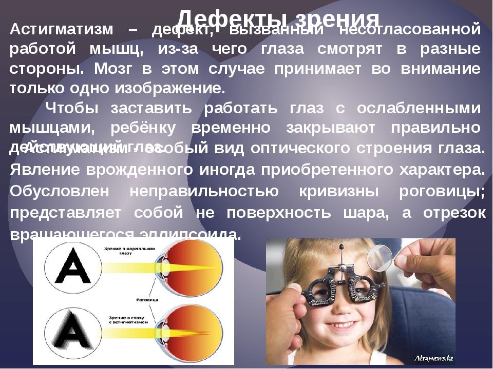 Астигматизм – дефект, вызванный несогласованной работой мышц, из-за чего глаз...