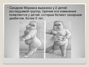 Синдром Мориака выражен у 2 детей исследуемой группы, причем эти изменения по