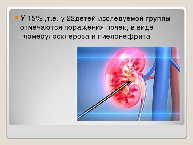 У 15% ,т.е. у 22детей исследуемой группы отмечаются поражения почек, в виде г...