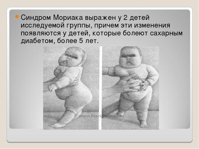 Синдром Мориака выражен у 2 детей исследуемой группы, причем эти изменения по...