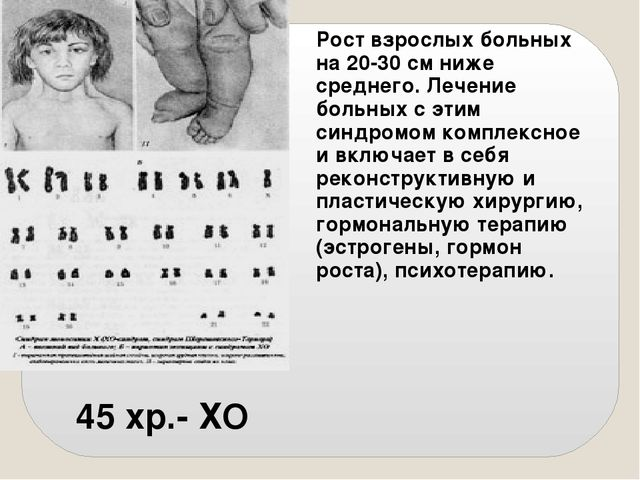 45 хр.- ХО Рост взрослых больных на 20-30 см ниже среднего. Лечение больных...