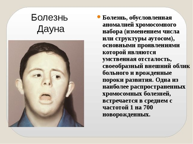 Болезнь, обусловленная аномалией хромосомного набора (изменением числа или ст...