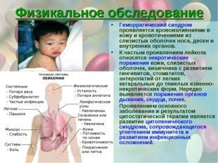 Физикальное обследование Геморрагический синдром проявляется кровоизлияниями