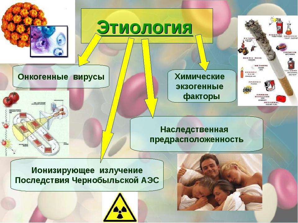 Этиология Онкогенные вирусы Ионизирующее излучение Последствия Чернобыльской...