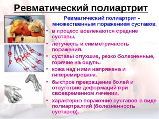 Ревматический полиартрит Ревматический полиартрит - множественным поражением