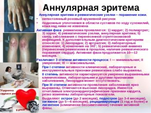 Аннулярная эритема Аннулярная эритема и ревматические узелки – поражение кожи