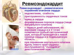 Ревмоэндокардит Ревмоэндокардит – ревматическое поражение клапанов сердца: не