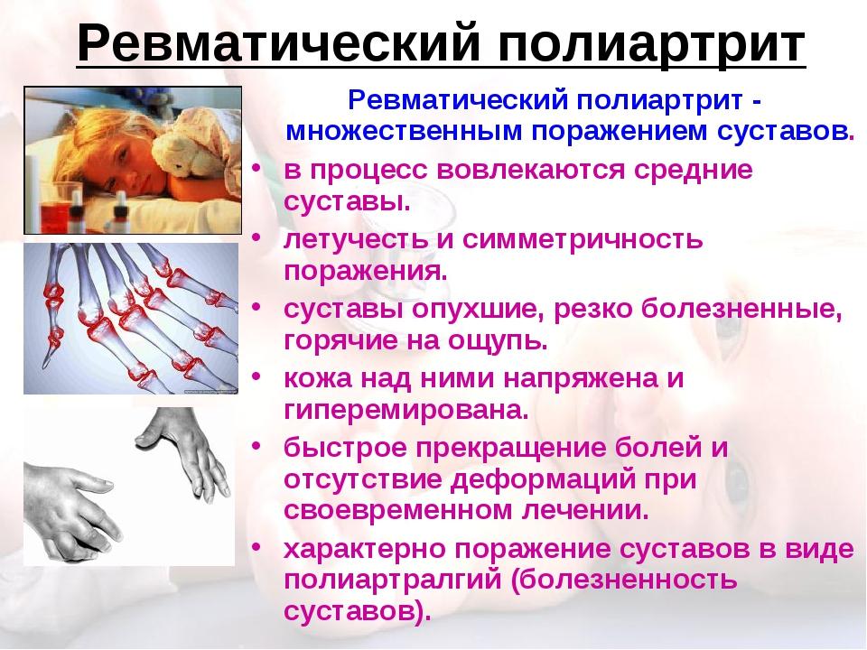 Ревматический полиартрит Ревматический полиартрит - множественным поражением...