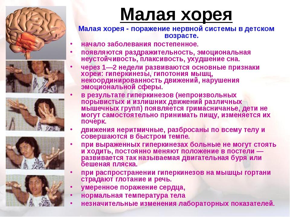 Малая хорея Малая хорея - поражение нервной системы в детском возрасте. начал...