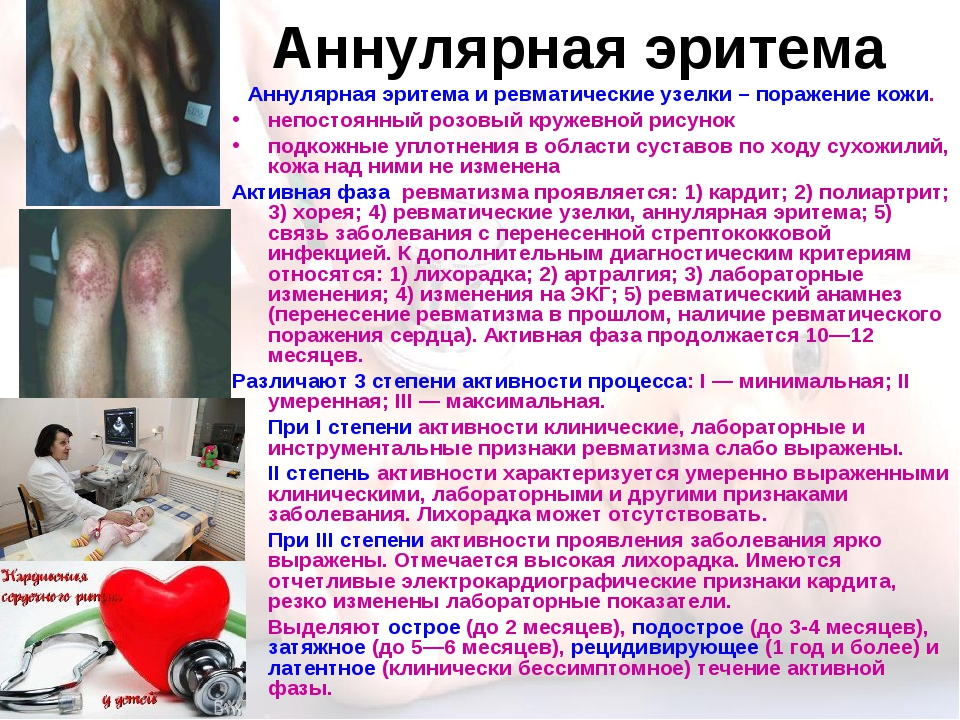 Аннулярная эритема Аннулярная эритема и ревматические узелки – поражение кожи...