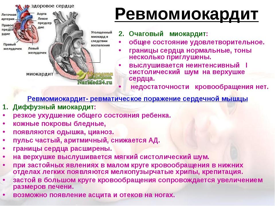 Ревмомиокардит Ревмомиокардит- ревматическое поражение сердечной мышцы Диффуз...