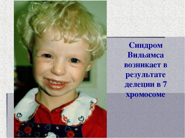 Синдром Вильямса возникает в результате делеции в 7 хромосоме