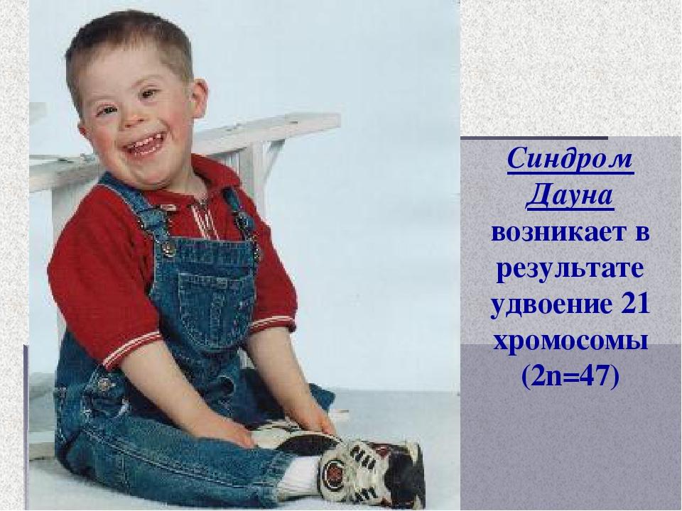 Синдром Дауна возникает в результате удвоение 21 хромосомы (2n=47)
