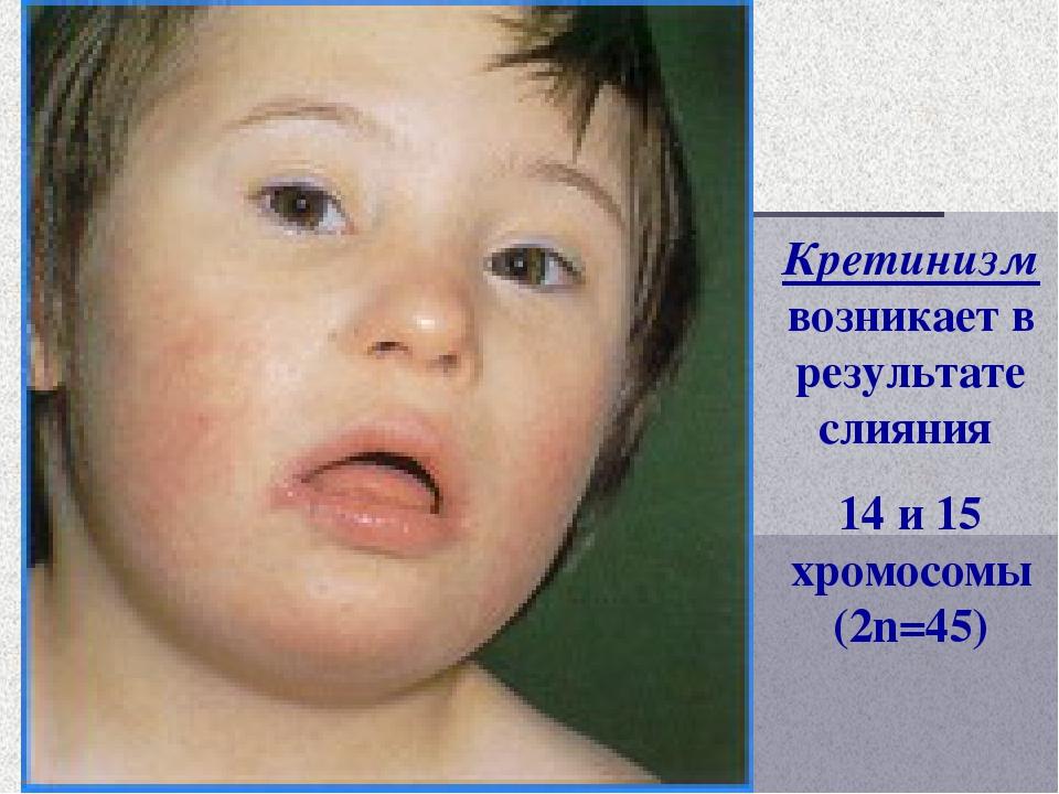 Кретинизм возникает в результате слияния 14 и 15 хромосомы (2n=45)