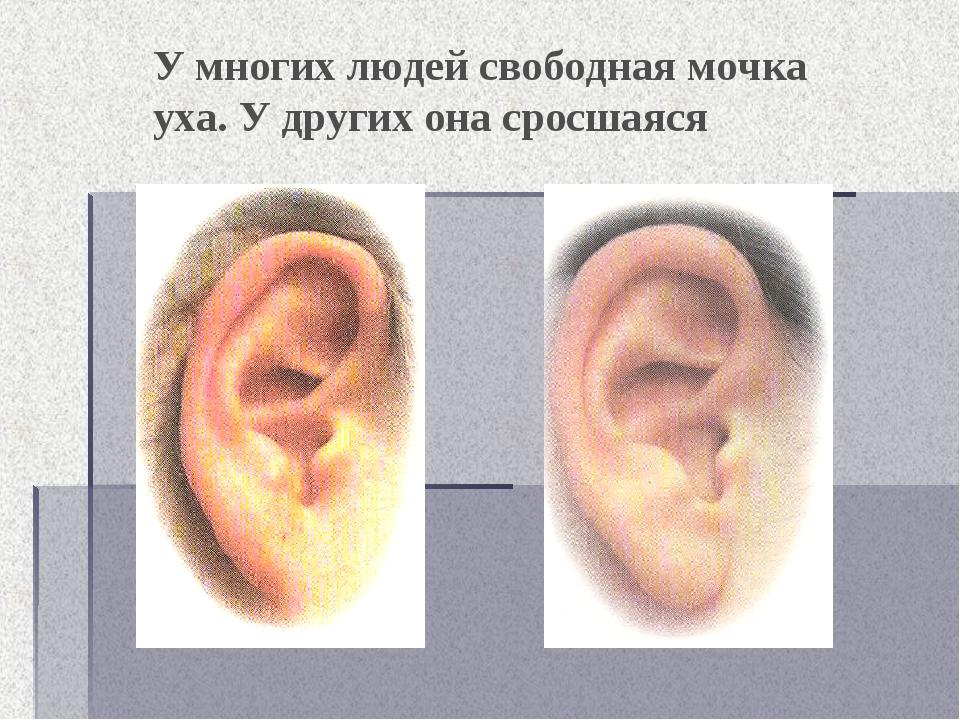 У многих людей свободная мочка уха. У других она сросшаяся
