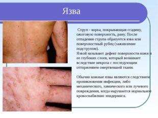 Язва Струп - корка, покрывающая ссадину, ожоговую поверхность, рану. После от