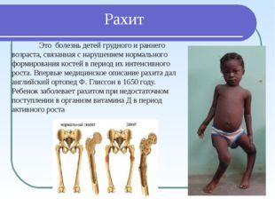 Рахит Это болезнь детей грудного и раннего возраста, связанная с нарушением