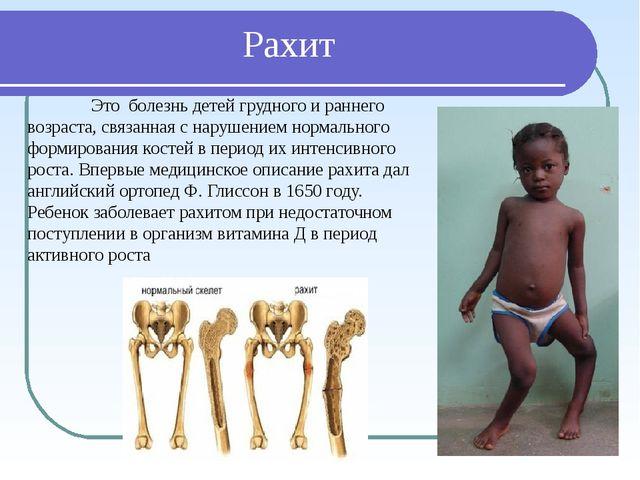 Рахит Это болезнь детей грудного и раннего возраста, связанная с нарушением...