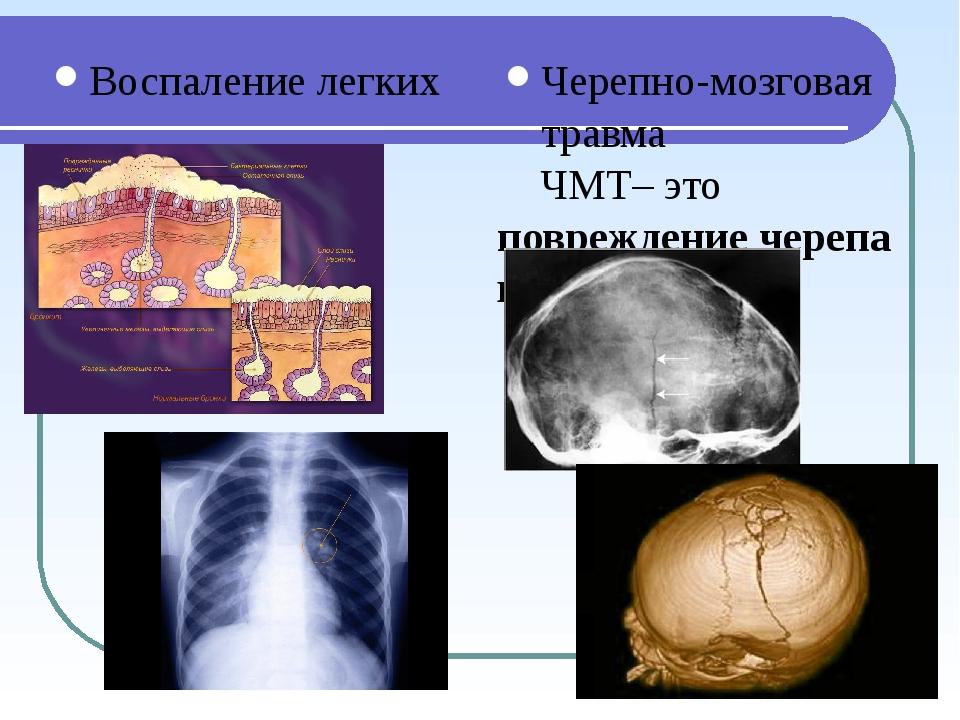 Воспаление легких Черепно-мозговая травма ЧМТ– это повреждение черепа и мозга