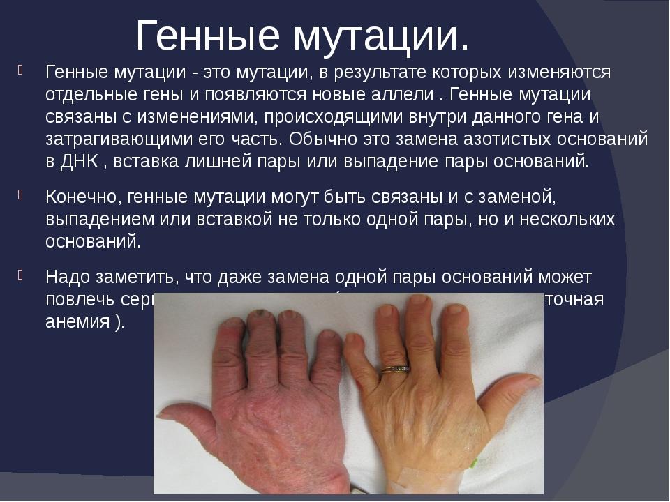 Генные мутации. Генные мутации - это мутации, в результате которых изменяютс...