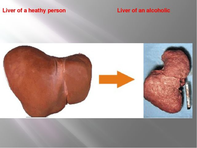 Liver of a heathy person Liver of an alcoholic