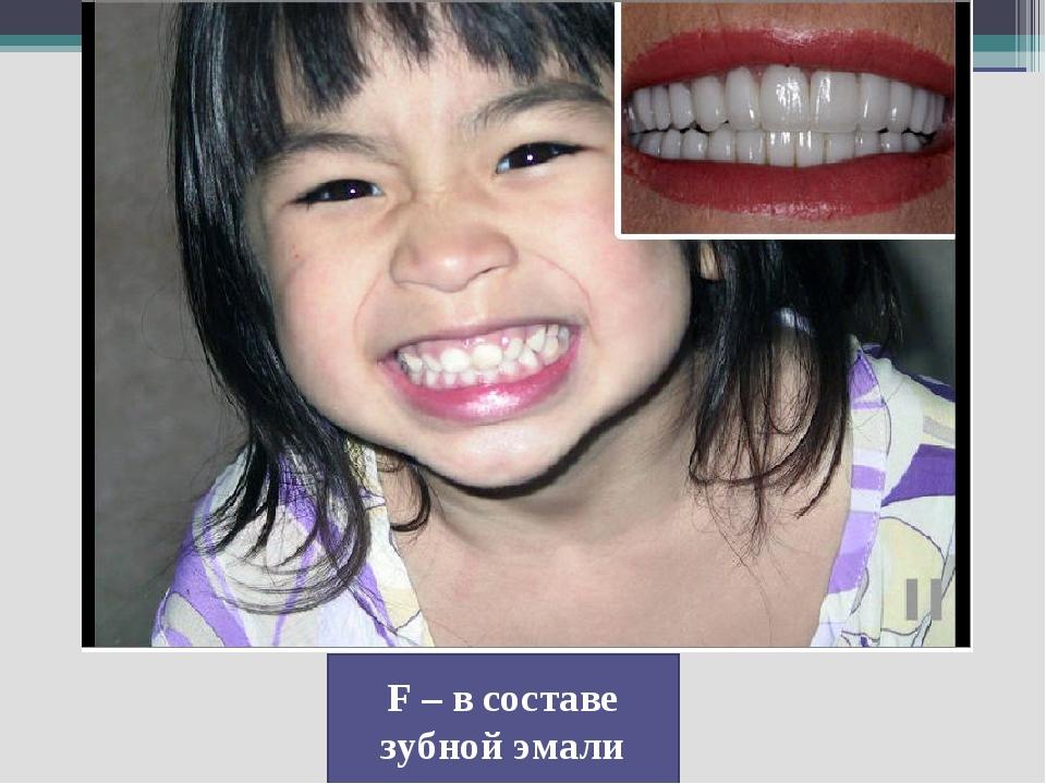 F – в составе зубной эмали