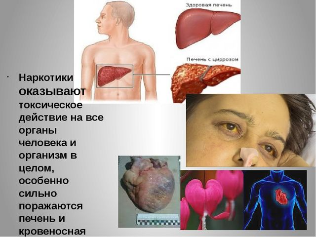 Наркотики оказывают токсическое действие на все органы человека и организм в...