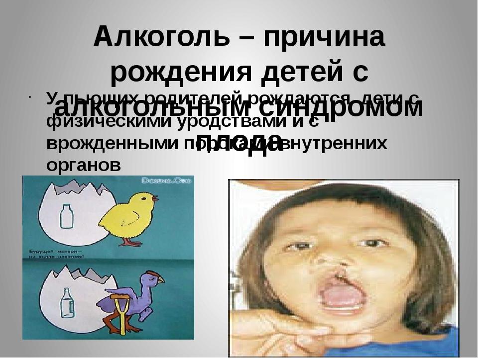 Алкоголь – причина рождения детей с алкогольным синдромом плода У пьющих роди...