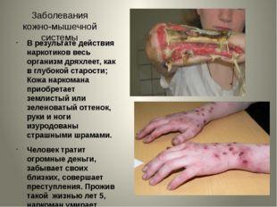Заболевания кожно-мышечной системы В результате действия наркотиков весь орга
