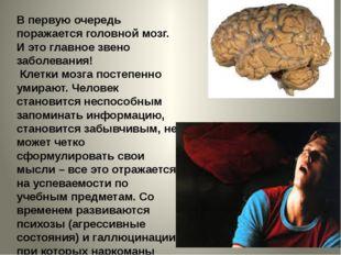 В первую очередь поражается головной мозг. И это главное звено заболевания! К