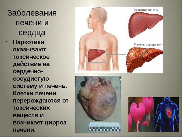 Заболевания печени и сердца Наркотики оказывают токсическое действие на серде...