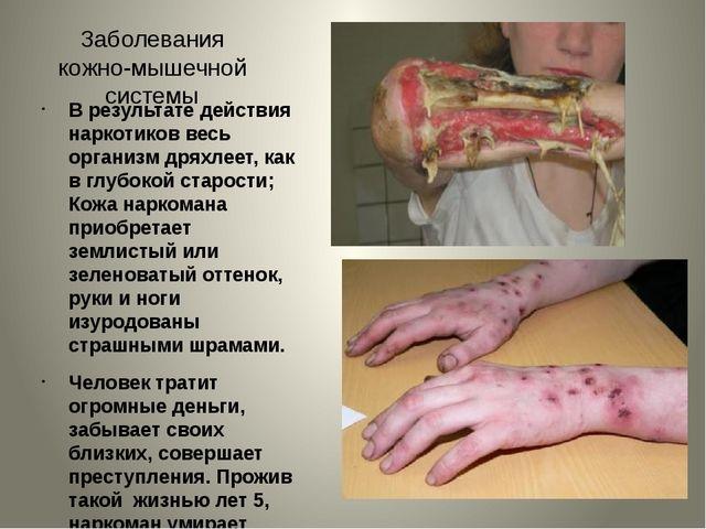 Заболевания кожно-мышечной системы В результате действия наркотиков весь орга...