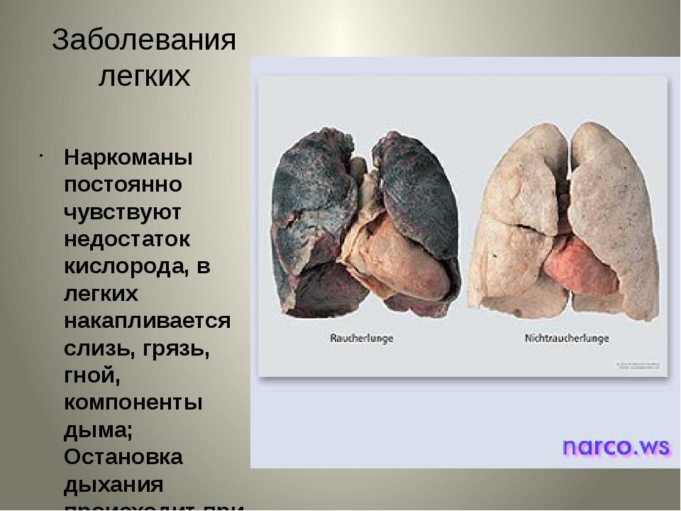 Заболевания легких Наркоманы постоянно чувствуют недостаток кислорода, в легк...