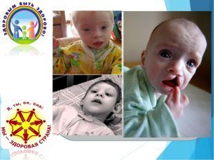 У наркоманов рождаются дети с умственной отсталостью и тяжелыми генетическим