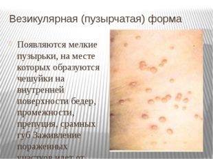 Везикулярная (пузырчатая) форма Появляются мелкие пузырьки, на месте которых