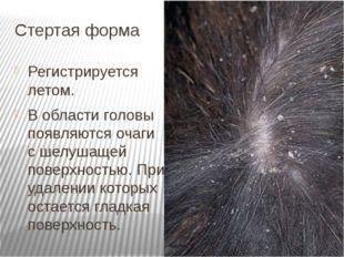 Стертая форма Регистрируется летом. В области головы появляются очаги с шелуш