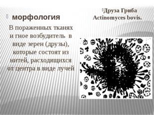 морфология Друза Гриба Actinomyces bovis. В пораженных тканях и гное возбудит