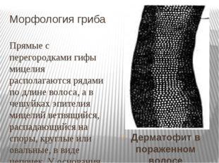 Морфология гриба Прямые с перегородками гифы мицелия располагаются рядами по