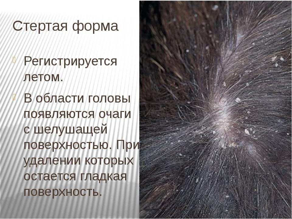 Стертая форма Регистрируется летом. В области головы появляются очаги с шелуш...
