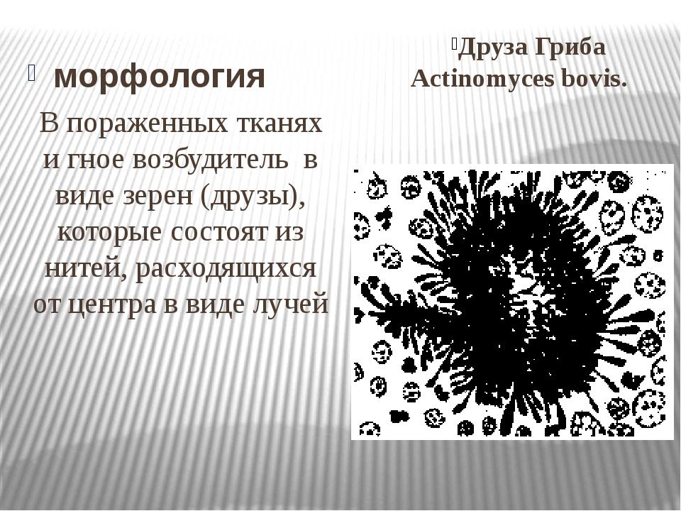 морфология Друза Гриба Actinomyces bovis. В пораженных тканях и гное возбудит...
