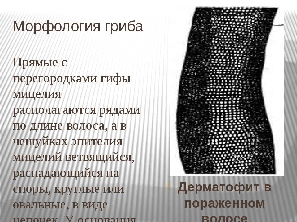 Морфология гриба Прямые с перегородками гифы мицелия располагаются рядами по...