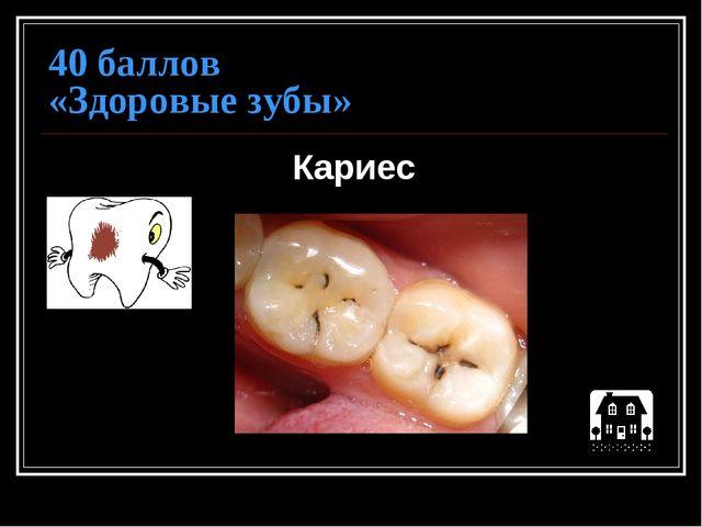 40 баллов «Здоровые зубы» Кариес