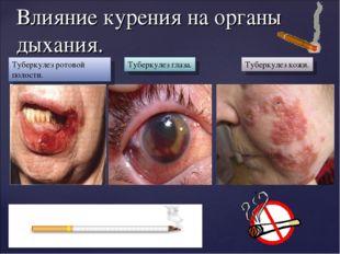 Влияние курения на органы дыхания. Туберкулез ротовой полости. Туберкулез гла
