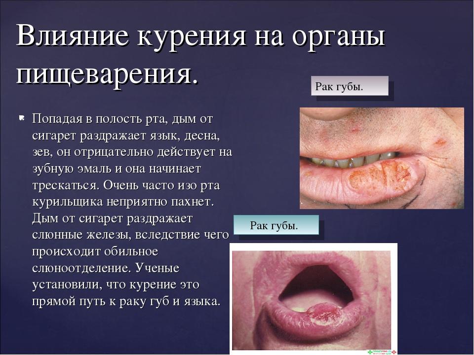 Попадая в полость рта, дым от сигарет раздражает язык, десна, зев, он отрицат...