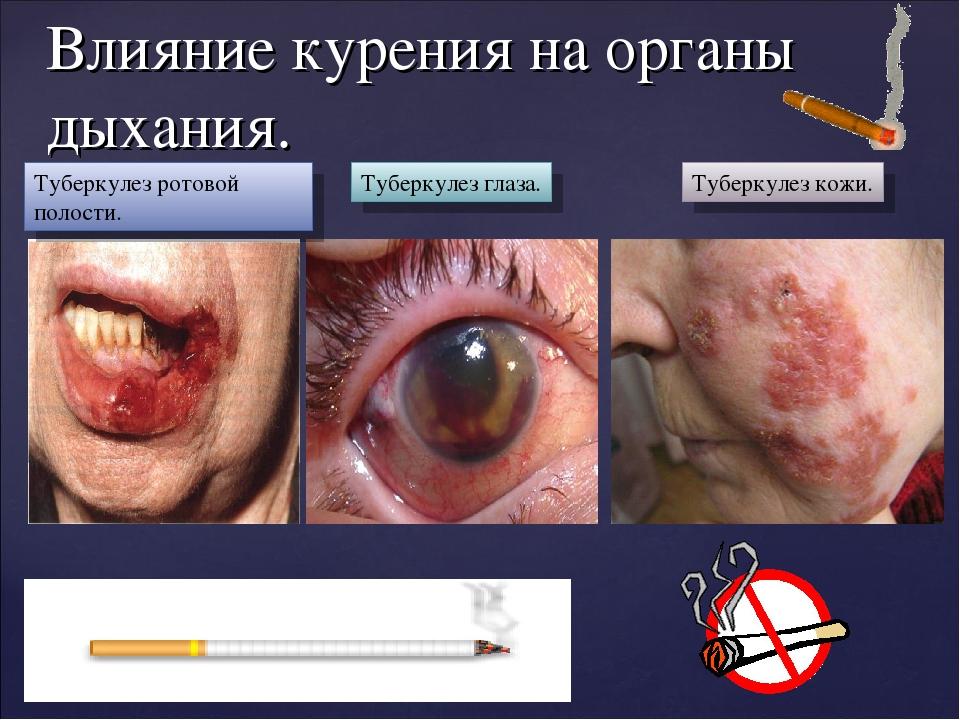 Влияние курения на органы дыхания. Туберкулез ротовой полости. Туберкулез гла...