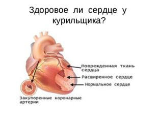 Здоровое ли сердце у курильщика?