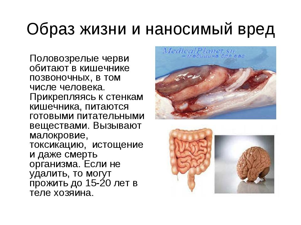 Образ жизни и наносимый вред Половозрелые черви обитают в кишечнике позвоноч...